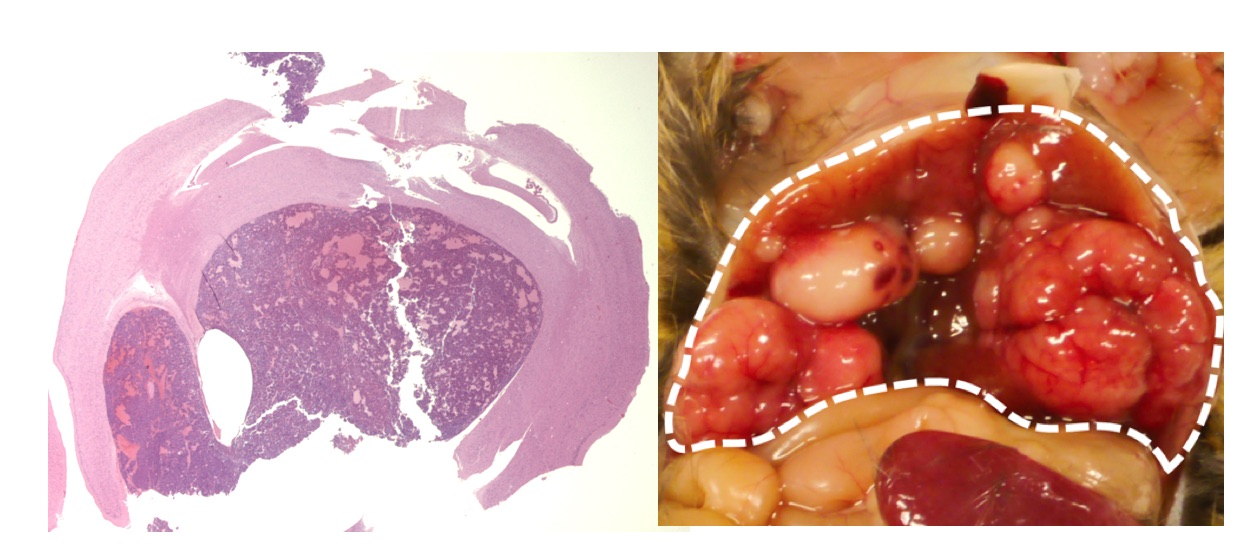 Figure 2 Brain tumor (left) and liver cancer (right) caused by suppression of RB1 function in mouse.